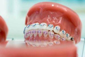 [Hỏi-Đáp] Liệu trồng răng giả có niềng được không?